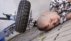 Common Injuries to Children