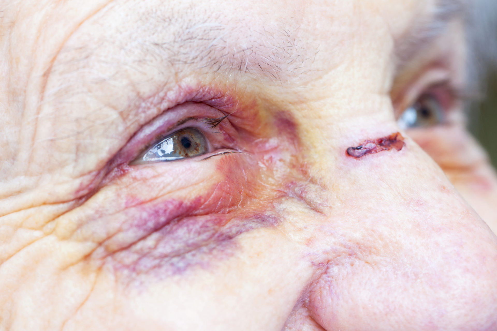 Closeup of elderly woman's face with a bruise on her eye.